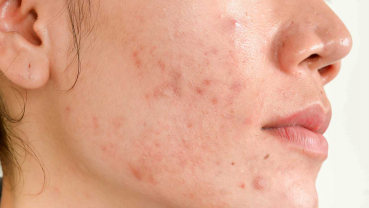 Tips to get rid of acne scars