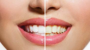 Myth Busters: Dental myths debunked