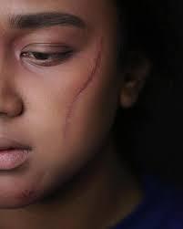 Scar of bruises