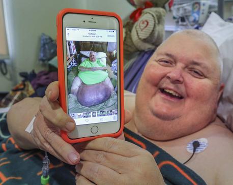 Doctor removes 130-pound tumor from Mississippi man