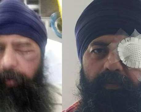 Sikh-American attacked by a group who removed his turban, cut off his hair
