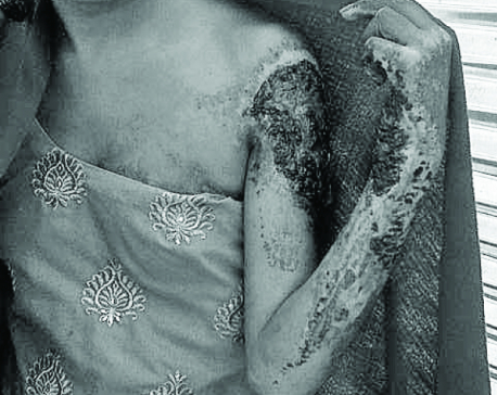 Girl burnt in Chhaupadi shed waiting for treatment