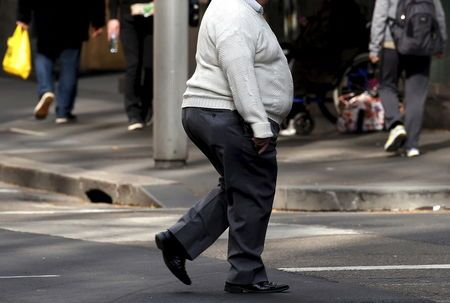 Stigma may keep people from getting weight loss surgery