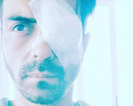 Bollywood actor Arjun Rampal suffers injuries