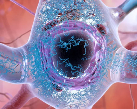 """The """"Big Bang"""" of Alzheimer's: Breakthrough study uncovers genesis of the disease"""