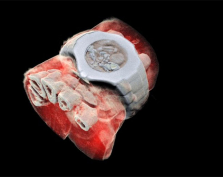 New Zealand scientists performs first 3D, color X-ray on a human