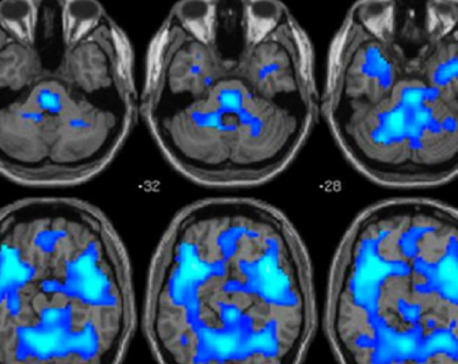 Neuroscientists Have Found New Brain Clues For What Really Causes Psychopathy