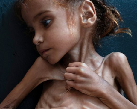 Yemen girl who became symbol of humanitarian crisis dies at 7