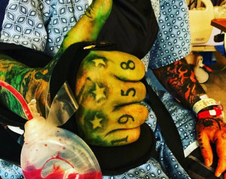 Motley Crue's Nikki Sixx shares post-surgery photos