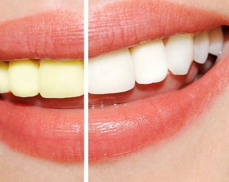 Try these food items to whiten your teeth naturally!