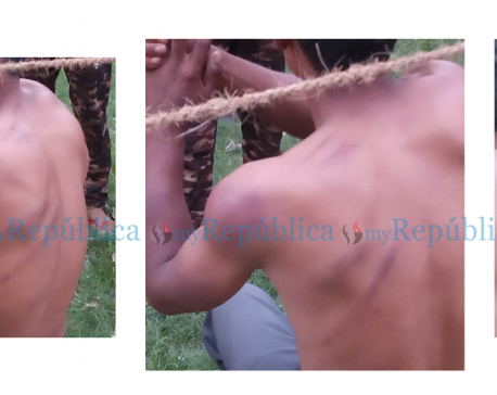 Police beating leaves a COVID-19 patient in Surkhet with a fractured hand