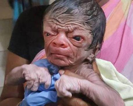 Bangladesh's Benjamin Button: Medical condition makes newborn look like 80-yr-old