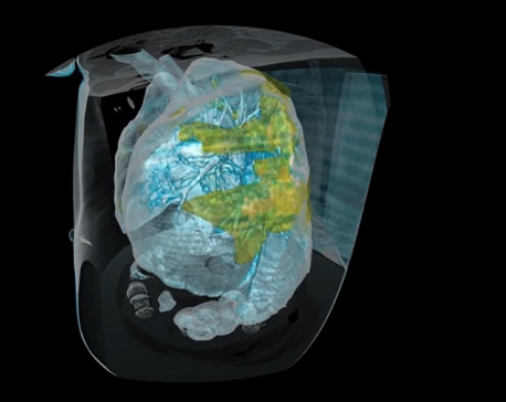 3D video shows the extent of lung damage in coronavirus patient (with video)