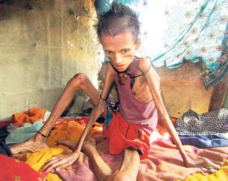 Malnutrition claims 17-year old, others on the line