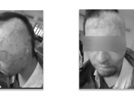 Family of male acid attack victim runs out of money; despite constant calls for help, authorities choose to stay unreceptive observers