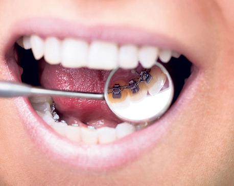 The basics of braces