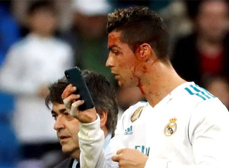 Ronaldo borrows doctor's phone to check facial injury on pitch