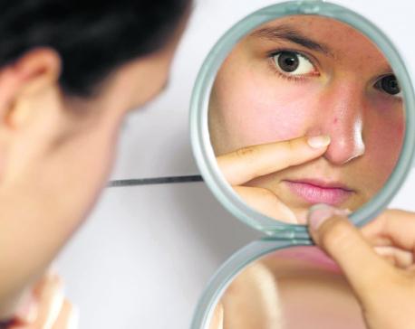 Understanding adult acne