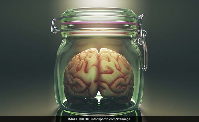Belgium gets world's biggest pickled brain collection (with video)