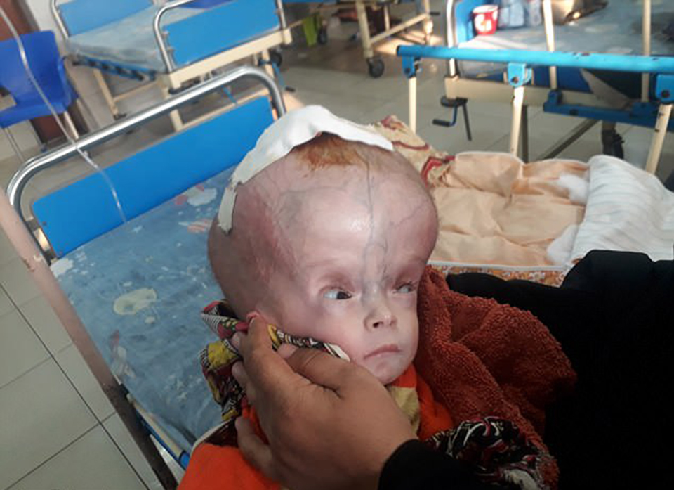 Baby with a 'football'-sized head awaits life-changing surgery