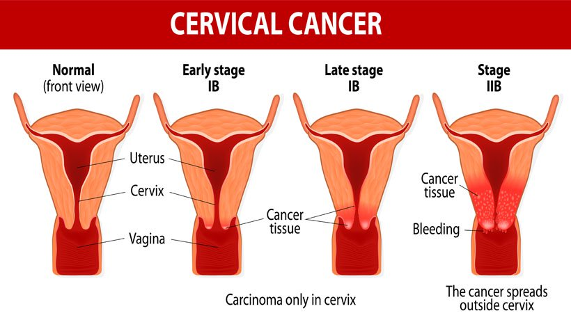 Cervical cancer common among rural women in Sindhupalchok