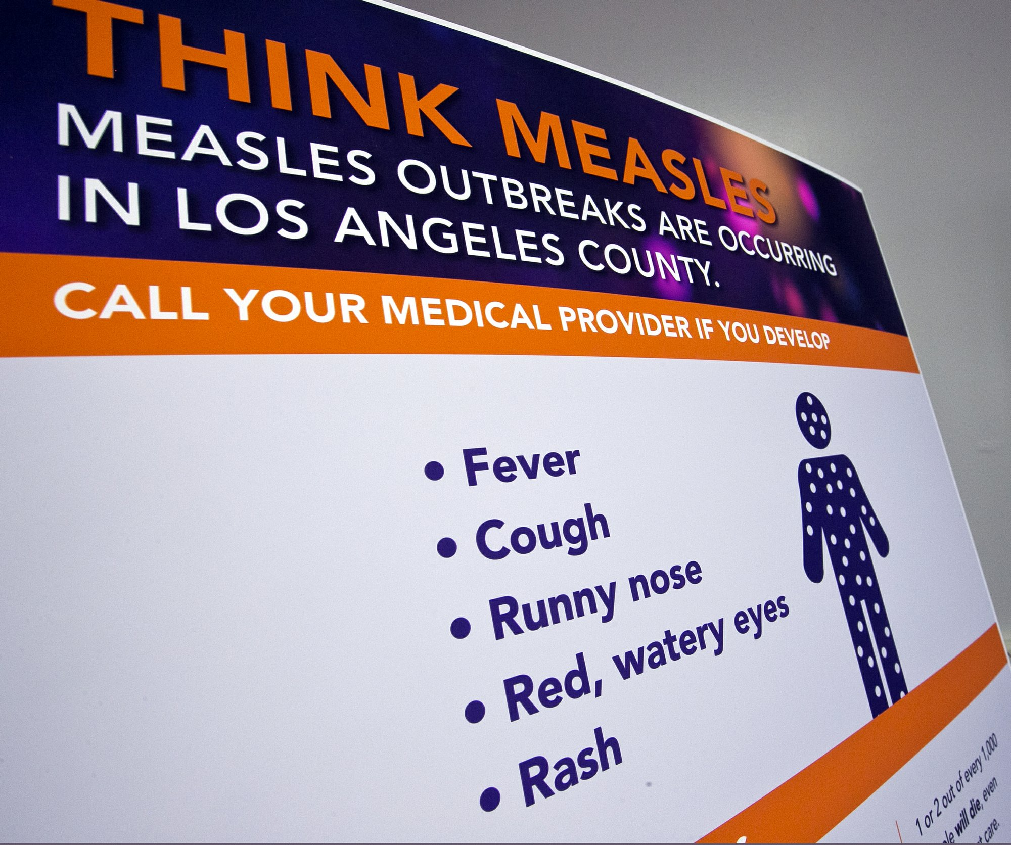 US measles count up to 555, with most new cases in New York