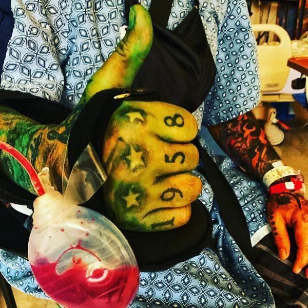 Motley Crue's Nikki Sixx shares post-surgery photos