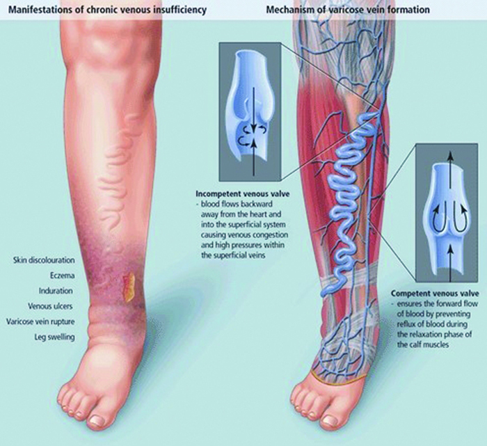 Varicose vein becoming a burden as an occupational disease in Nepal