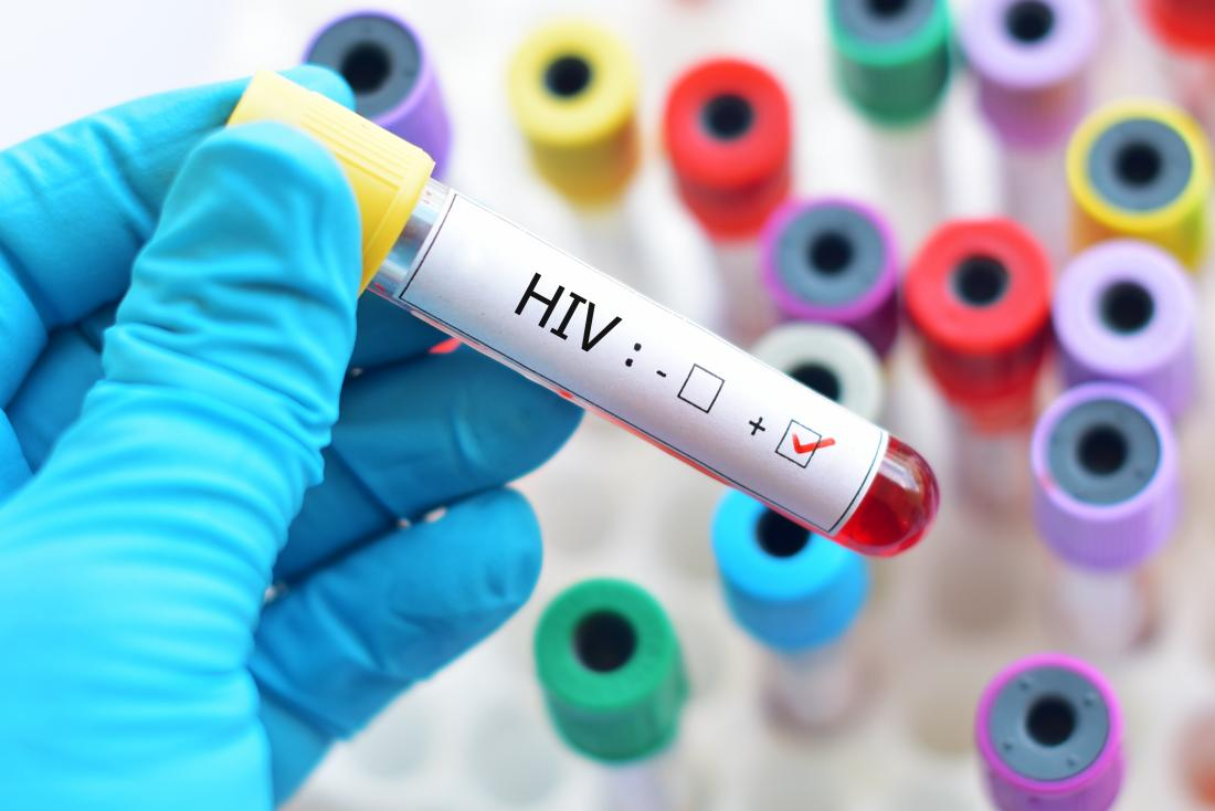 HIV could soon end after radical drug found to stop virus transmitting