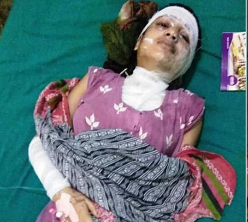 Teenage girl injured in acid attack in Birgunj