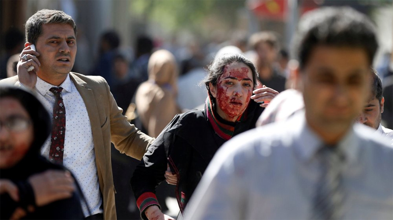 5 Nepalis injured in Kabul suicide bomb attack