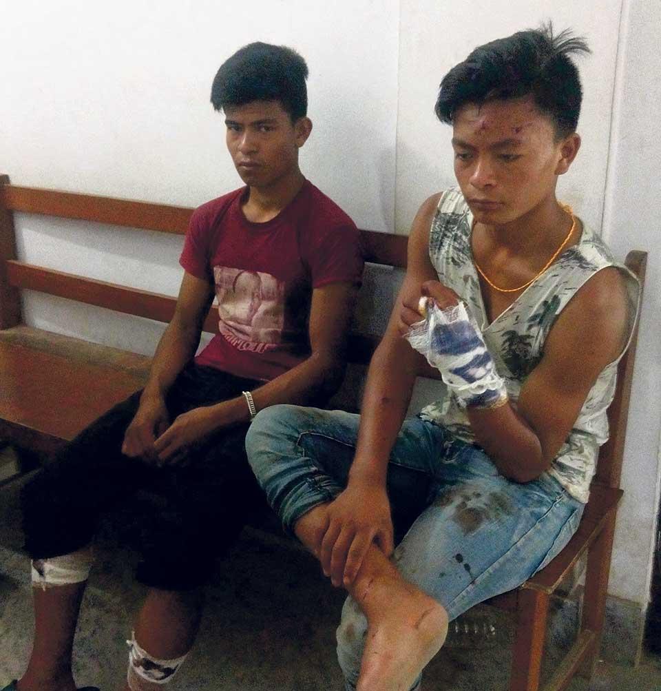 Two injured in leopard attack in Kathmandu