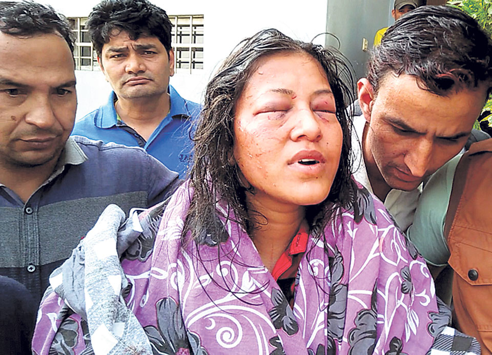 Woman Attacked With Hot Oil For Refusing Marriage Proposal