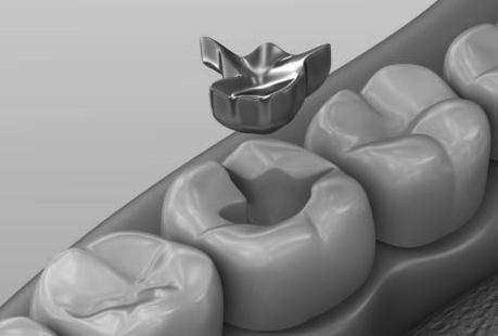 Decision to ban mercury dental amalgam lauded