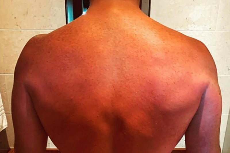 Chris Pratt shows off post-honeymoon sunburns