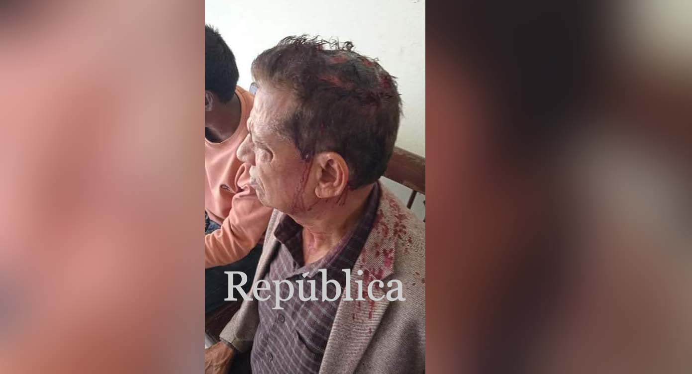 Ex-minister Jha injured in clash between police and agitating Dahal-Nepal faction cadres in Janakpur
