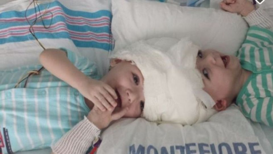 Conjoined twins successfully separated in 20-hr surgery